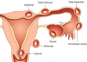 Ectopic pregnancy types
