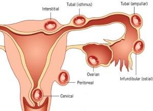 Ectopic pregnancy types