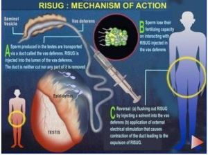 RISUG mechanism of action